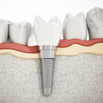 Протезирование зубов — виды, результаты, показания, противопоказания