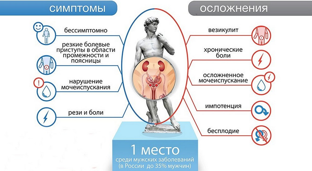 Рекомендации по лечению простатита простатит его функции
