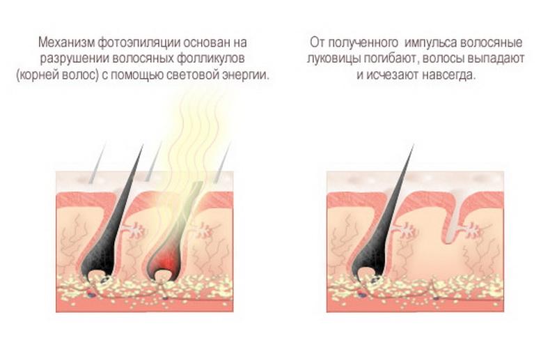 Электроэпиляция при беременности можно или нельзя