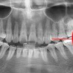 Ретинированный зуб — причины и лечение