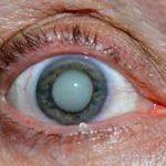 Факоэмульсификация – ультразвуковой метод хирургии катаракты